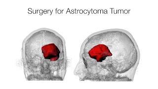 Penyebab, Pencegahan, dan Tanda-Tanda Kanker Otak ...