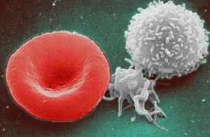Penyebab, Pencegahan, dan Tanda-Tanda Kanker Darah ...